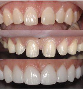 dentist palm beach
